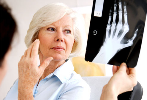 Post image for Vitamin D deficiency likely cause of increased rheumatoid arthritis cases among caucasian women