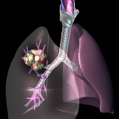 Post image for Vitamin B6 Linked to Lower Lung Cancer Risk