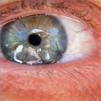 Post image for Omega 3s significantly reduce risk of macular degeneration